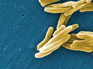 New research shows how drug-resistant bacteria can be killed