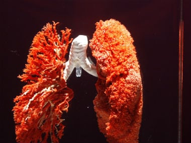 Finding it hard to breathe? Get screened for chronic ...
