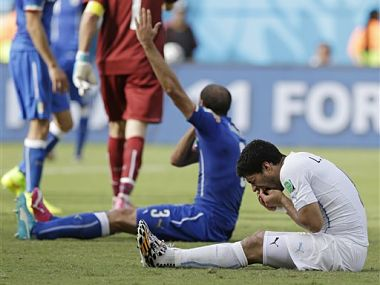 Uruguay's Luis Suarez holds his teeth after the incident with Italy's Giorgio Chiellini. AP