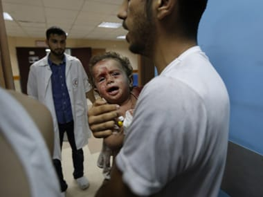 A wounded baby receives treatment at al-Shifa hospital, in Gaza City. Representational Image. AFP image
