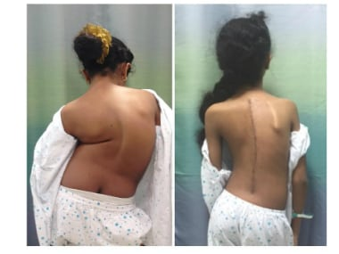 The patient's spine before and after the surgery