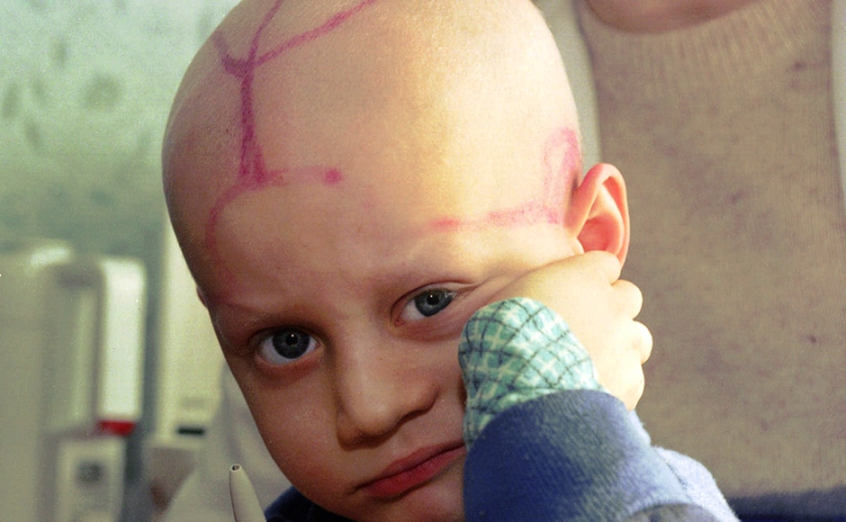Five-year-old Alek Zhloba, who suffers from leukaemia, is held by his doctor in the children's cancer ward of the Gomel Regional Hospital, in Belarus. There are tracks from medical procedures on his head. Much of the nuclear fallout from the 1986 Chernobyl disaster fell on Belarus. Thirty years ago, the Chernobyl Nuclear Power Plant exploded in Ukraine, spreading radioactive material across much of the Northern Hemisphere. Image courtesy: AP