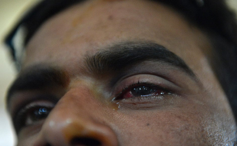 A wounded Kashmiri boy displays his damaged eye as he lies on a hospital bed in Srinagar. The boy was hit by pellets fired by Indian security forces during a protest.