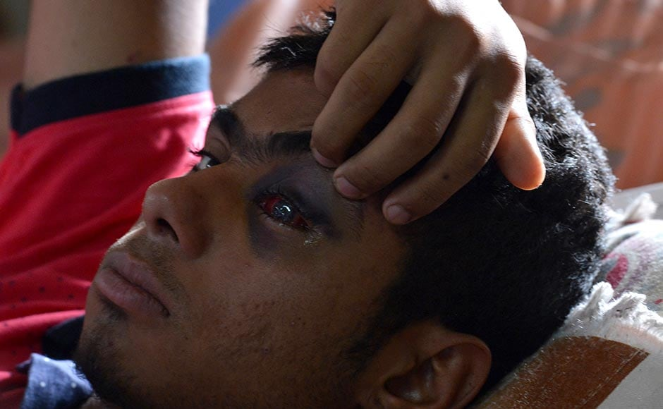 Hospitals in Kashmir are overwhelmed, with hundreds of wounded patients pouring in every day.