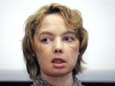 File photo of Isabelle Dinoire, the woman who received the world's first partial face transplant. AP