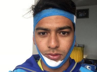 Unmukt Chand scored a century with broken jaw to help Delhi beat UP in Vijay Hazare trophy
