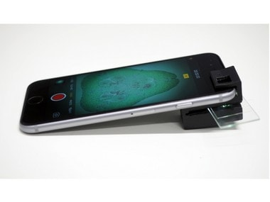 Australian researchers develop 3D-printed clip-on which turns the smartphone into a microscope