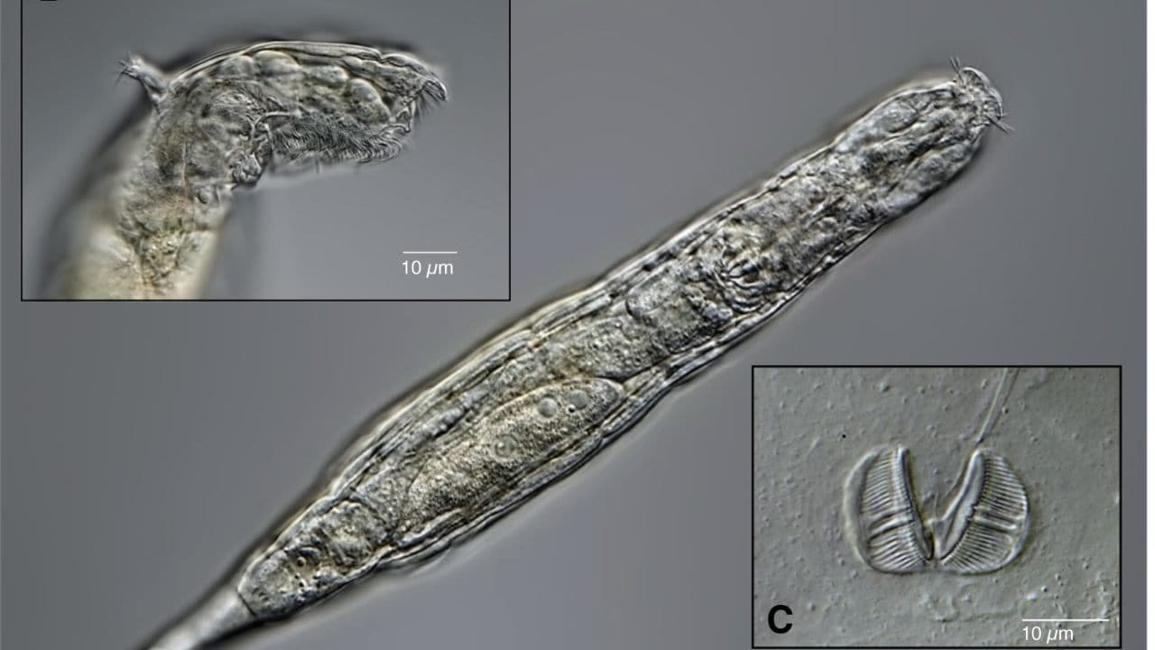 The bdelloid rotifer came back to life after being frozen for 24,000 years in Siberian permafrost.  Image credit: Author provided.