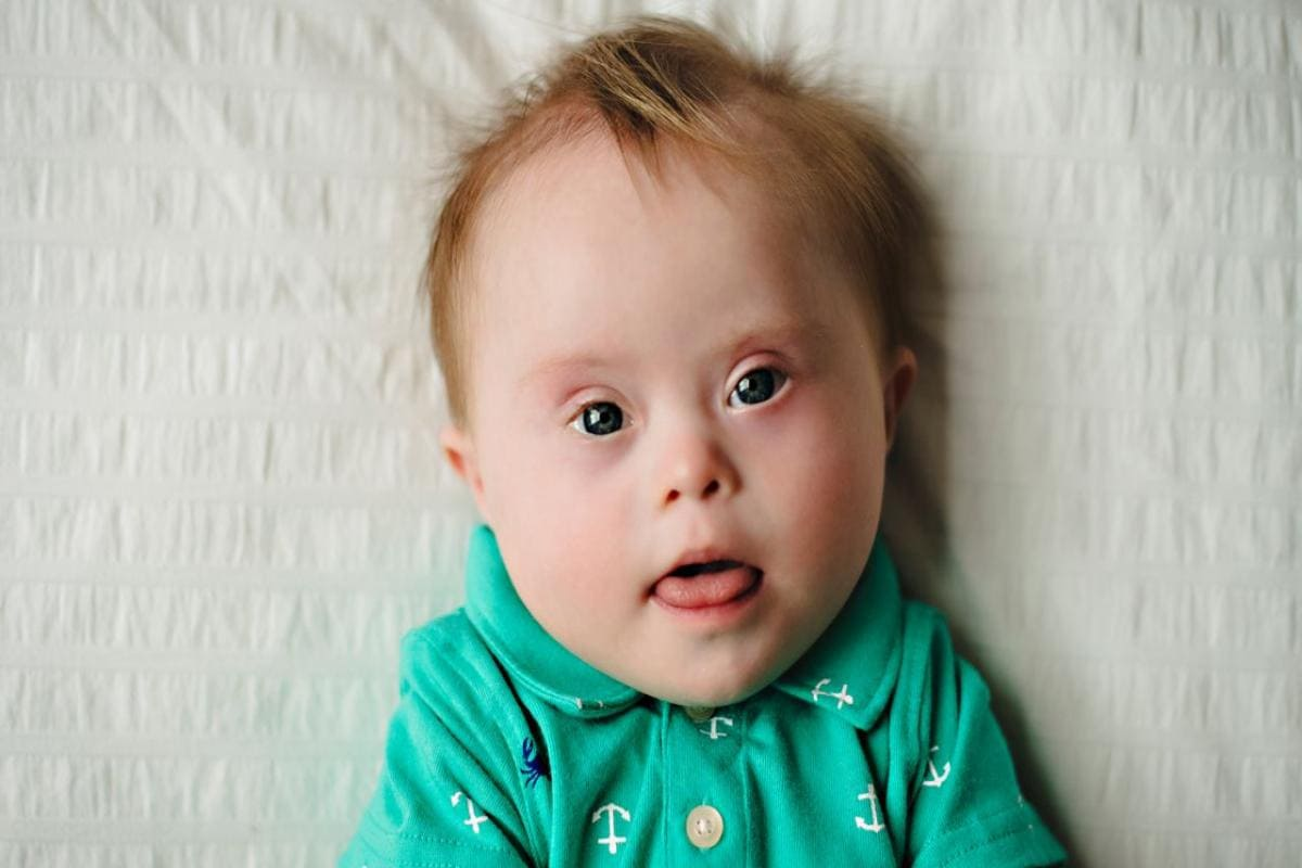 Four in five children with Down syndrome are born to mothers under the age  of 35- Technology News, Firstpost
