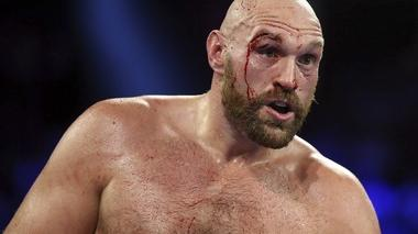 Bloodied in battle with Otto Wallin but unbowed, Tyson Fury says he is 'ready for war' against Deontay Wilder