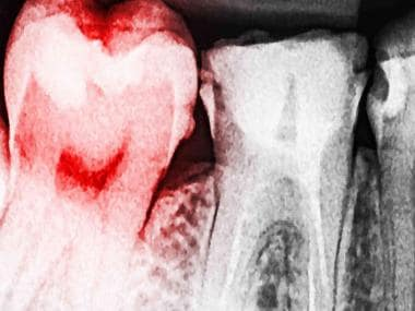 Genes, obesity and hereditary traits play a role in tooth decay, gum disease: Study