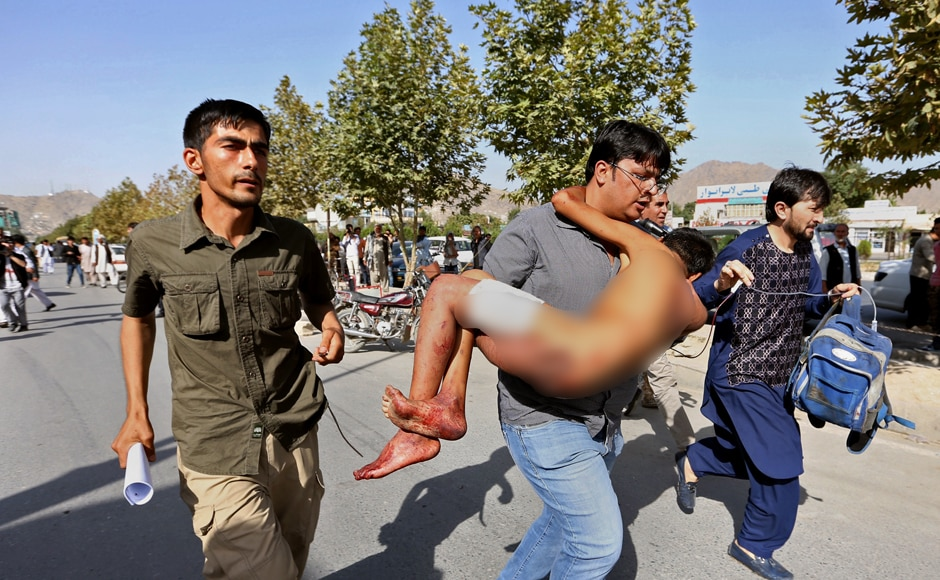An injured boy is carried to a hospital after an explosion struck a protest in Kabul, Afghanistan, Saturday, July 23, 2016. Islamic State has claimed responsibility for the attacks according to a statement posted by IS-linked news agency Amaq. The death toll is feared to rise further as over 200 people are injured. AP