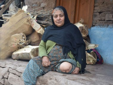 Saleema Begum was hit by six bullets in her leg. It was amputated later. Image courtesy: Sameer Yasir/Firstpost