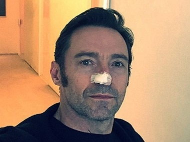 Hugh Jackman's advice to fans after being treated for skin cancer: 'Wear Sunscreen'