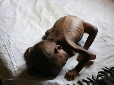 Kerala announces aid to parents of 38 tribal children who died due to malnutrition