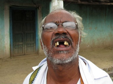 Sheshrao's front teeth were affected by fluorosis. Image courtesy: Parth MN