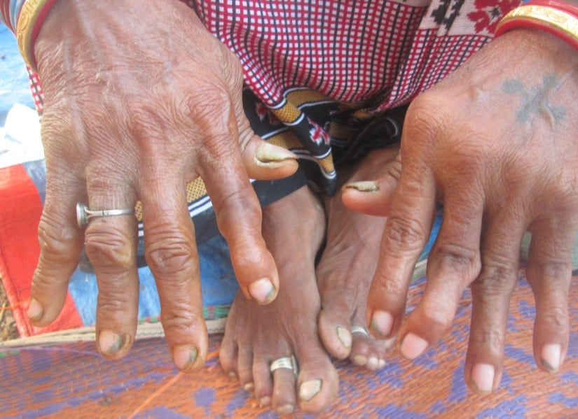A woman at Karlakot village in Nuapada district says her flourosis caused her deformed bones. Image courtesy: Manish Kumar