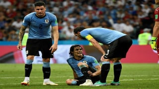 Fifa World Cup 2018 Edinson Cavani Has Not Suffered A Calf Muscle Tear Confirm Uruguay Ahead Of Clash Against France Sports News Firstpost