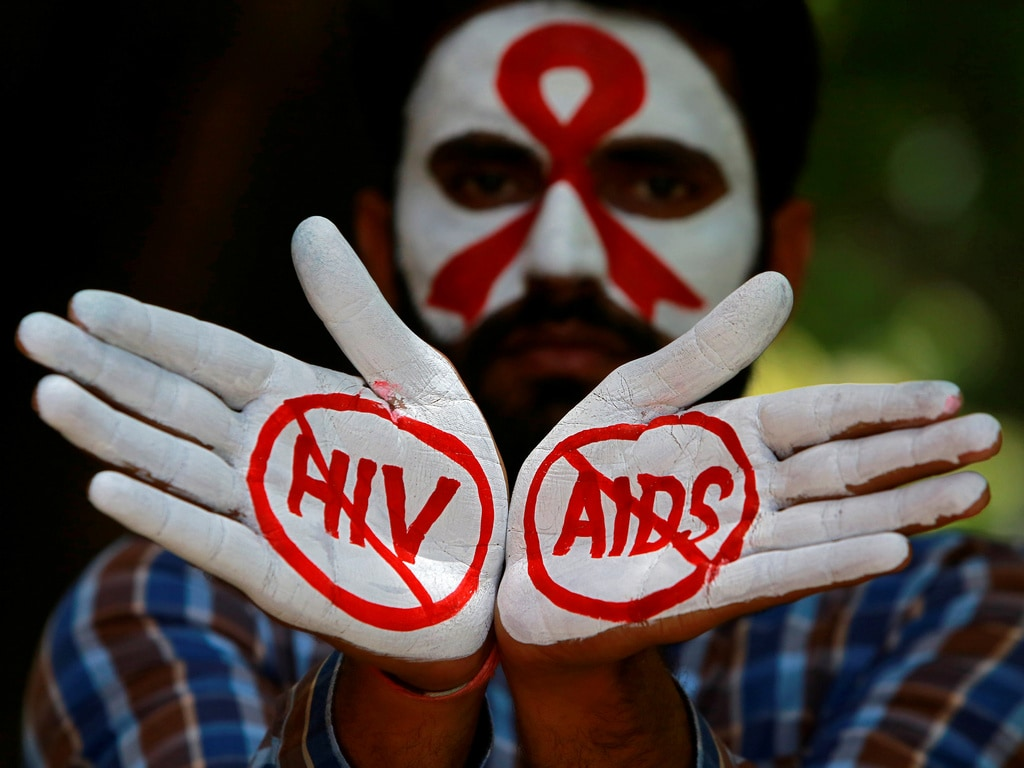 HIV experts call for an end to unscientific laws that include imprisonment