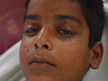 A Kashmiri boy wounded by pellets lies on a hospital bed. AFP