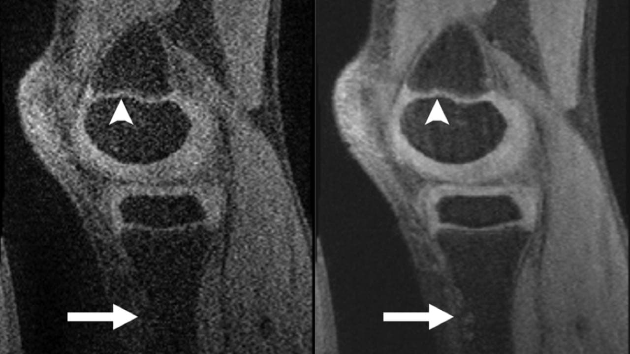 A CS MRI scan of the knee (on the right) shows more detail and resolution than a regular MRI on the left. Image courtesy: Radiology/Vasanawala et al