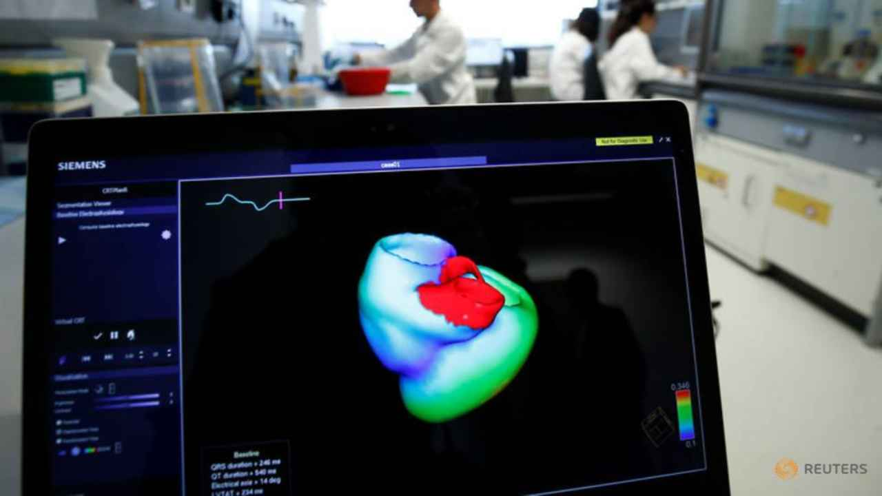 A monitor shows a 3-dimensional scan of a human heart at Heidelberg University Hospital's research wing. Reuters