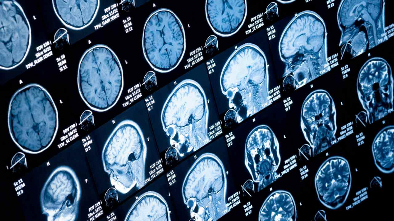 A collection of brain CT scans to spot tumours. Image courtesy: NCL UK
