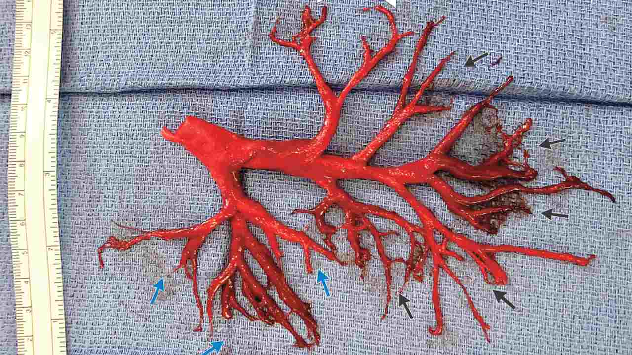 Man coughed up a clot that models his right bronchial tree. Image courtesy: NEJM