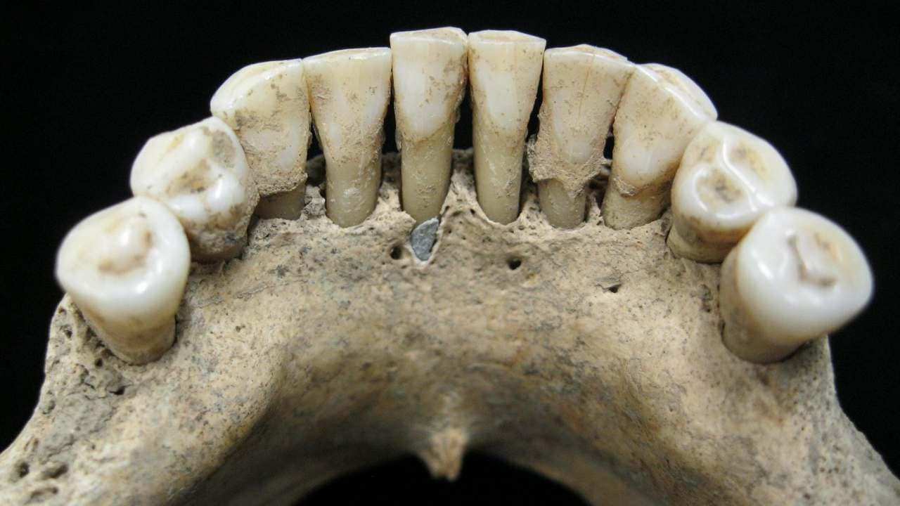Medieval woman's skeleton with rare blue pigment in jaw may rewrite history- Technology News, Firstpost