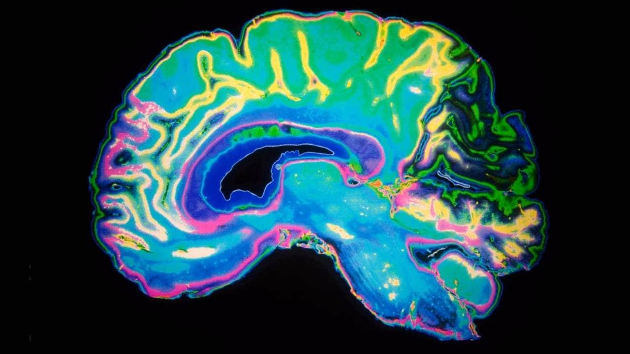 Researchers map free will, choice seconds before making decisions in brain scans