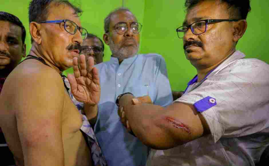TMC candidate for Howrah Constituency Prasun Banerjee (L) and his party associate showed their injury marks to media personnel after a scuffle at a polling station in Howrah district. PTI
