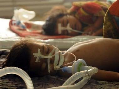 Six more people die of Japanese Encephalitis in Assam as toll rises to 82; 11 cases of JE detected in Arunachal Pradesh