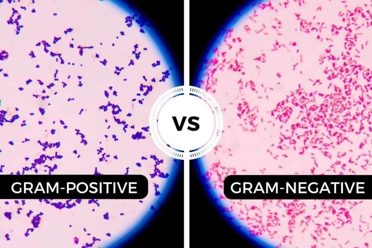 Gram staining can help tell types of bacteria apart. Image credit thisonevsthatone