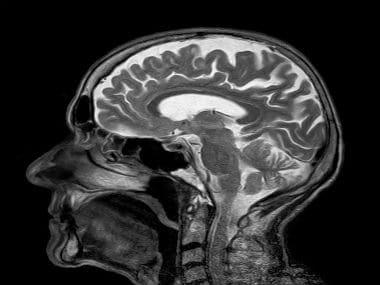 Cerebral aneurysm: What happens when the brain bleeds - Firstpost