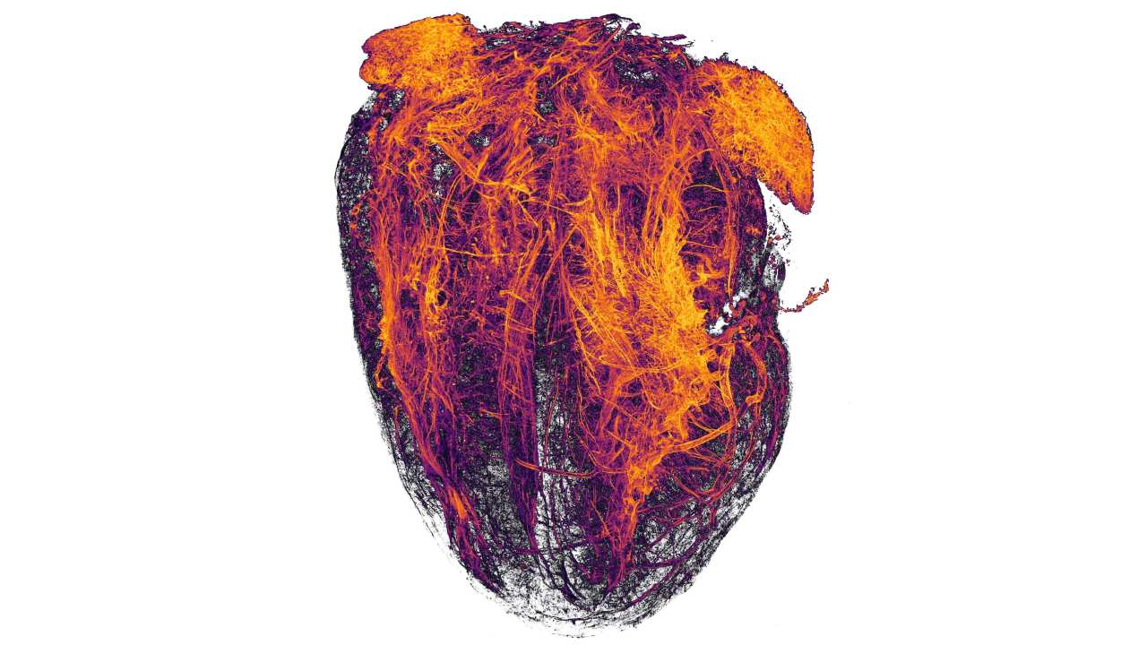 In 20th place, blood vessels of a mouse heart following a heart attack. Image credit: Simon Merz Lea Bornemann, Sebastian Korste/Nikon Small World