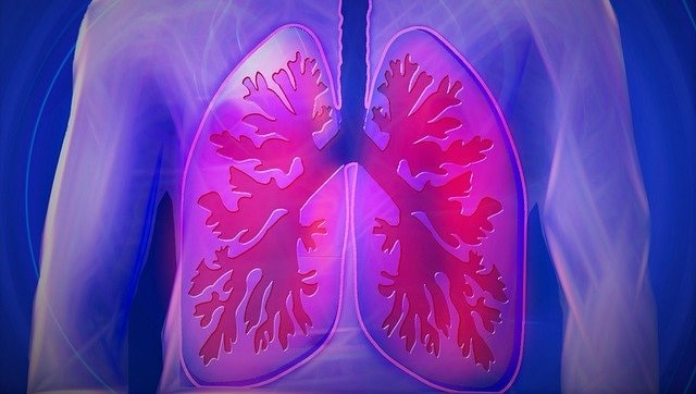 Lung ultrasound can detect severity, duration of infection in COVID-19 patients
