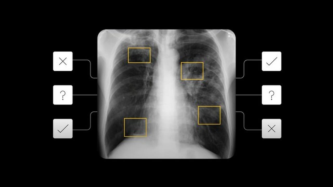 AI tool to detect active pulmonary tuberculosis announced- Technology News, Gadgetclock