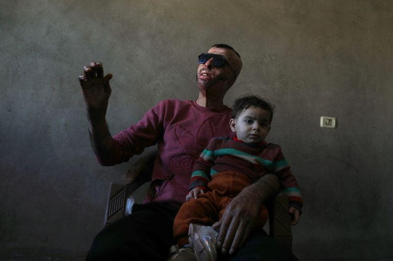 Gaza burn victims get 3Dprinter face masks made close to home